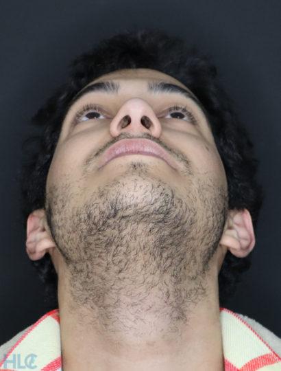 До ринопластики носа хлопцеві - Вид знизу