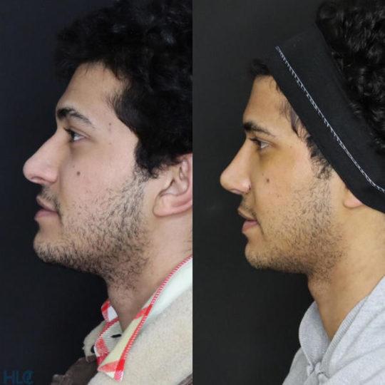 До та після ринопластики відкритим методом, корекція колумелли (крил) - Вид зліва