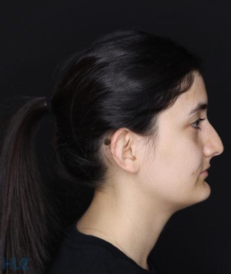 До корекції вух дівчині - Вид справа