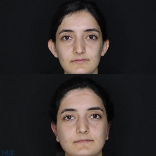 До та після отопластика дівчині - Результат моделювання нової форми вух