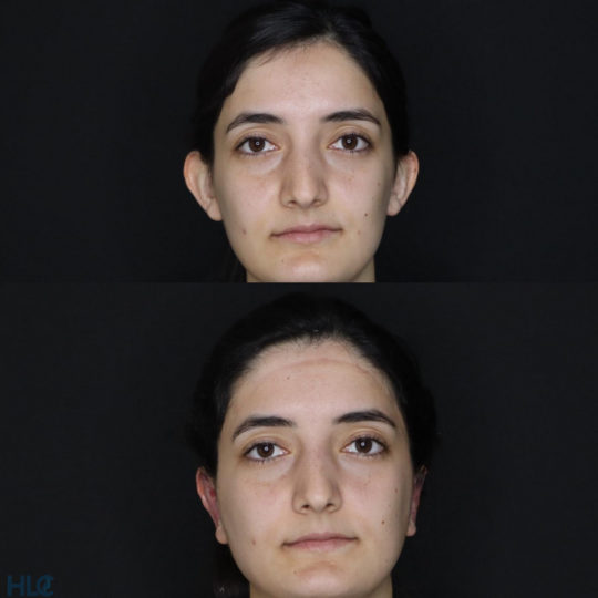 До и после отопластики девушке - Результат моделирования новой формы ушей