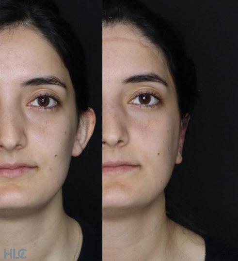 Сравнение до и после процедуры отопластики девушке