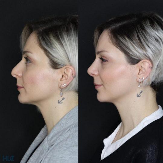 До реконструктивной ринопластики кончика носа девушке открытым методом спустя 1 неделю - Сравнение слева