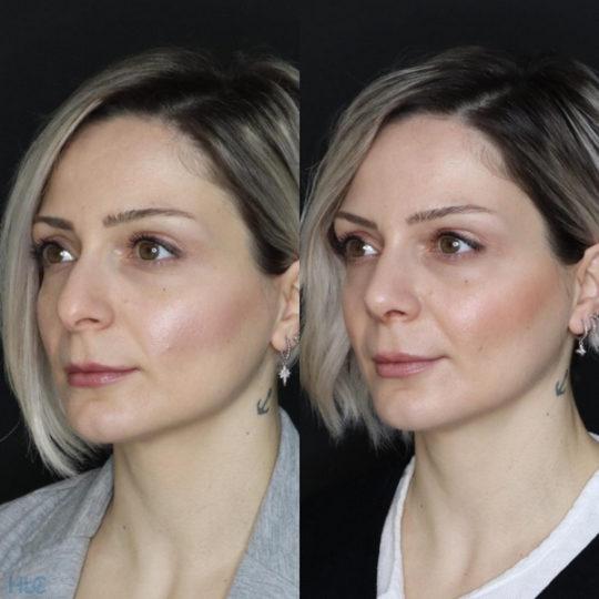 До реконструктивной ринопластики кончика носа девушке открытым методом спустя 1 неделю - Сравнение слева 2