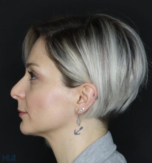 До реконструкции кончика носа девушке открытым методо - Вид слева