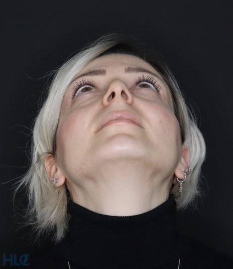 До реконструкції кінчика носа дівчині відкритим методом - Вид знизу