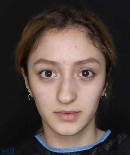 До процедуры ринопластики девушке, результат коррекции кончика носа - Вид спереди