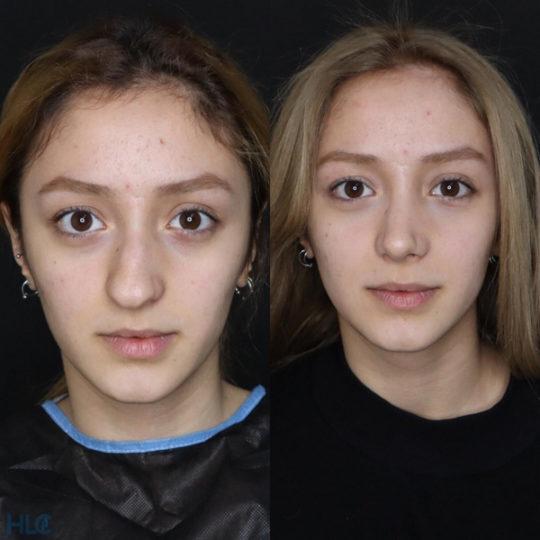 До і після ринопластики кінчика носа дівчині - Вид спереду