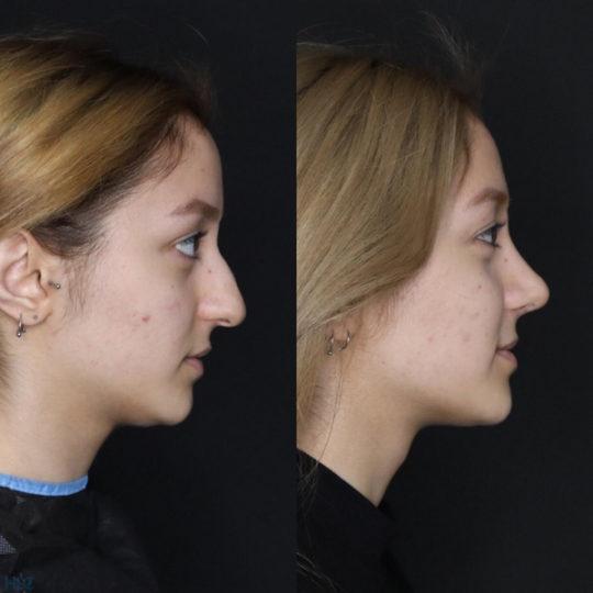 До і після ринопластики кінчика носа дівчині - Вид справа