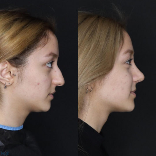 До и после ринопластики кончика носа девушке - Вид справа