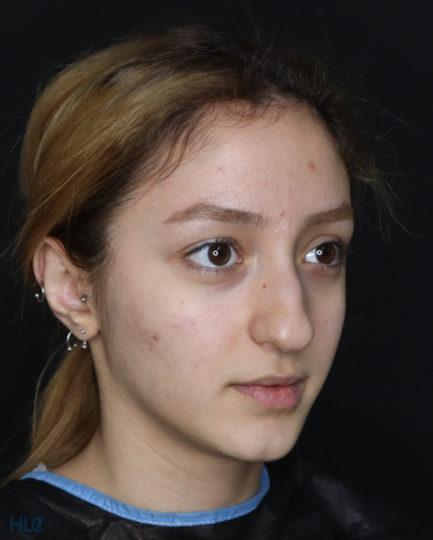 До процедуры ринопластики девушке, результат коррекции кончика носа - Вид справа