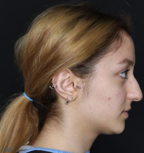 До процедури ринопластики дівчині, результат корекції кінчика носа - Вид справа 2