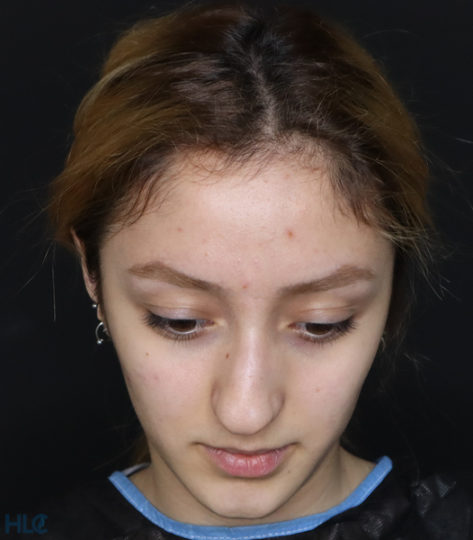 До процедури ринопластики дівчині, результат корекції кінчика носа - Вид зверху