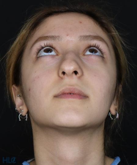 До процедуры ринопластики девушке, результат коррекции кончика носа - Вид снизу