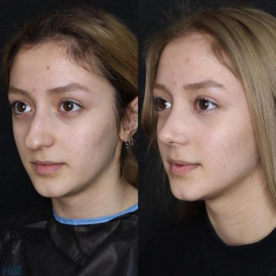 До і після ринопластики кінчика носа дівчині - Вид зліва