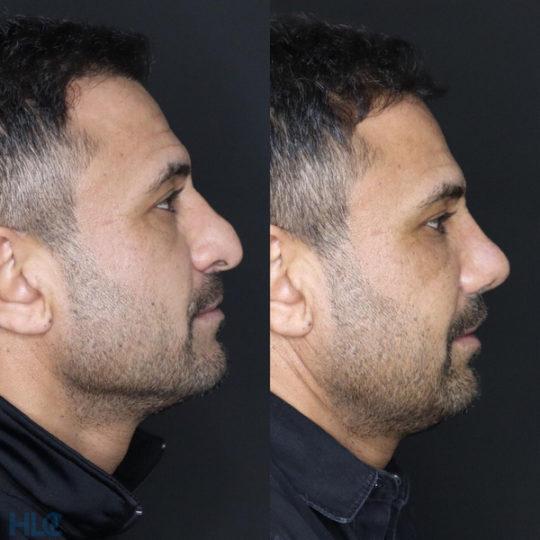 До и после коррекционной ринопластики открытым методом мужчине - Вид справа