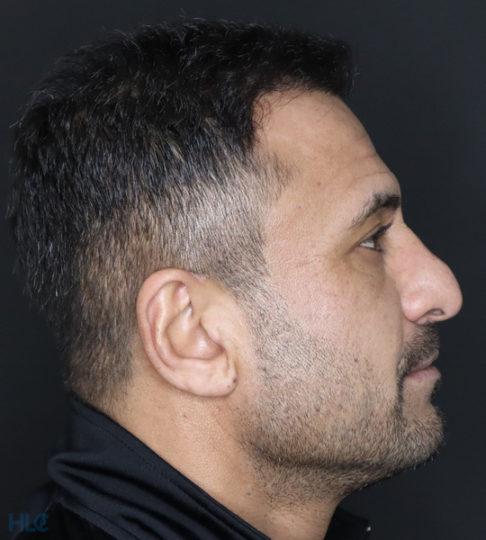 До ринопластики носа мужчине - вид справа