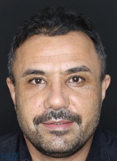 После коррекции носа мужчине - Коррекция кончика носа и перегородки - Вид спереди