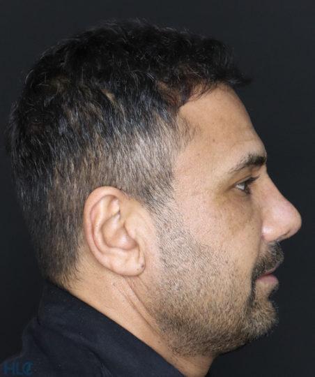 После коррекции носа мужчине - Коррекция кончика носа и перегородки - Вид справа 2