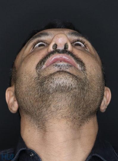 После коррекции носа мужчине - Коррекция кончика носа и перегородки - Вид снизу