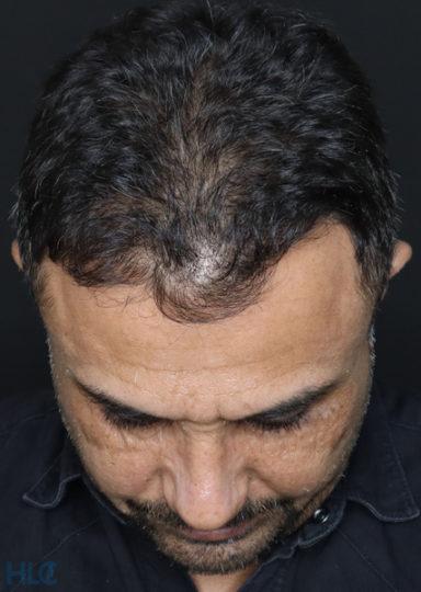 После коррекции носа мужчине - Коррекция кончика носа и перегородки - Вид сверху