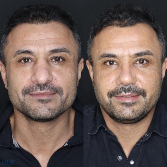 До і після корекційної ринопластики відкритим методом чоловікові - Вид спереду
