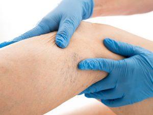 лікування варикозу лазером