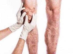 лікування варикозу вен на ногах лазером