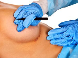 пластична операція зменшення грудей