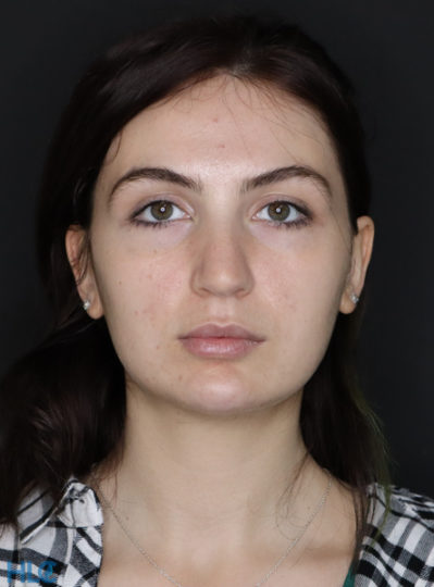 До видалення грудок Біша жінці на обличчі - Вид спереду