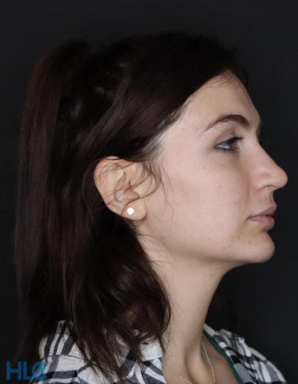 До видалення грудок Біша жінці на обличчі - Вид справа
