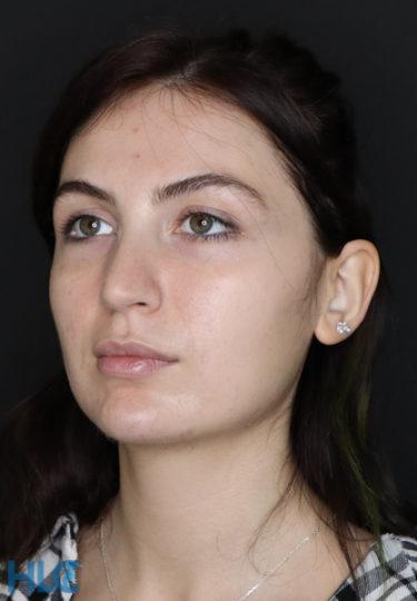 До видалення грудок Біша жінці на обличчі - Вид зліва 2