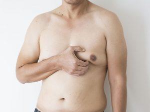 видалення гінекомастії у чоловіків