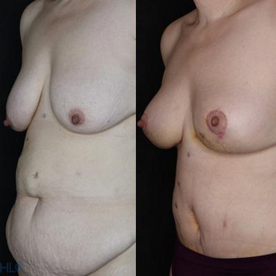 До и после пластики живота и подтяжки груди