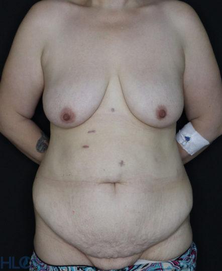 До операции подтяжки груди и пластики живота - Вид спереди