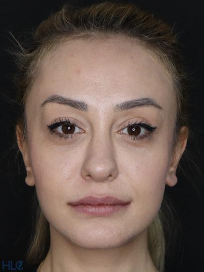 До коррекции кончика носа девушке, повторная ринопластика - Вид спереди