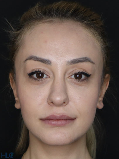 До корекції кінчика носа дівчині, повторна ринопластика - Вид спереду