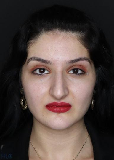 До процедури ринопластики дівчині, корекція носа відкритим методом - Вид спереду