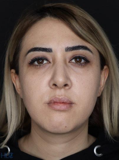 До процедури збільшення губ і корекції підборіддя дівчині - Вид спереду