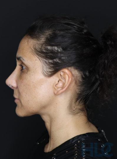 Через 2 тижні після зменшення перенісся і підняття кінчика носа жінці - Вид збоку, ліворуч