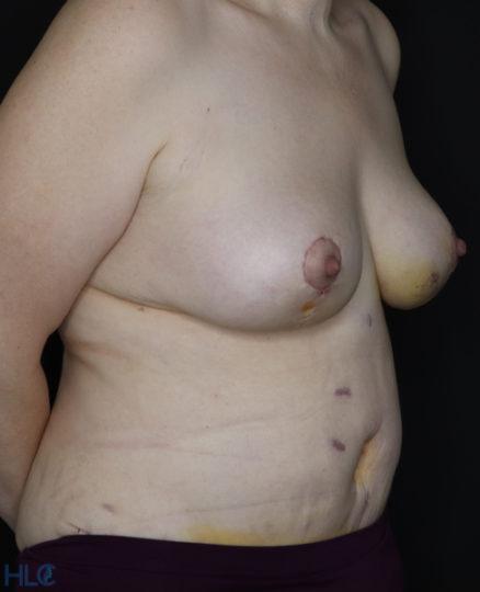 Після операції підтяжки грудей і пластики живота - Вид під кутом, праворуч