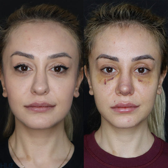 До и после повторной ринопластики, сравнительное фото - Вид спереди