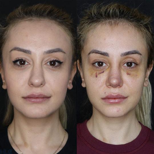 До і після повторної ринопластики, порівняльне фото - Вид спереду