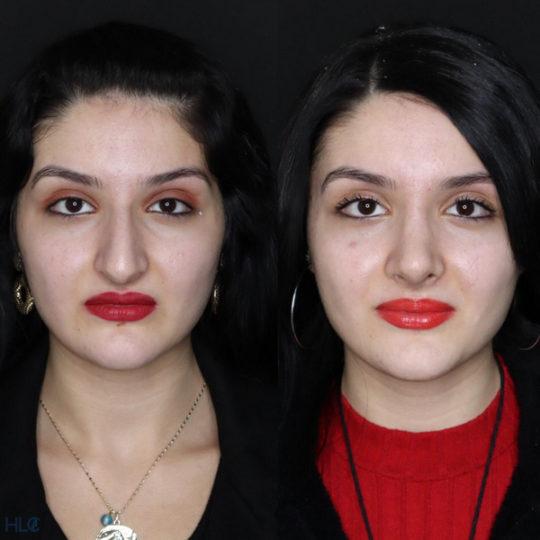 До і після ринопластики, порівняльне фото - Вид спереду