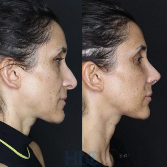 До і після зменшення перенісся жінці і підняття кінчика носа, через 2 тижні - вид збоку, праворуч