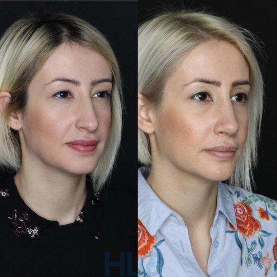 Порівняльні фото до і після ринопластики дівчині, через 2 тижні - Вид під кутом
