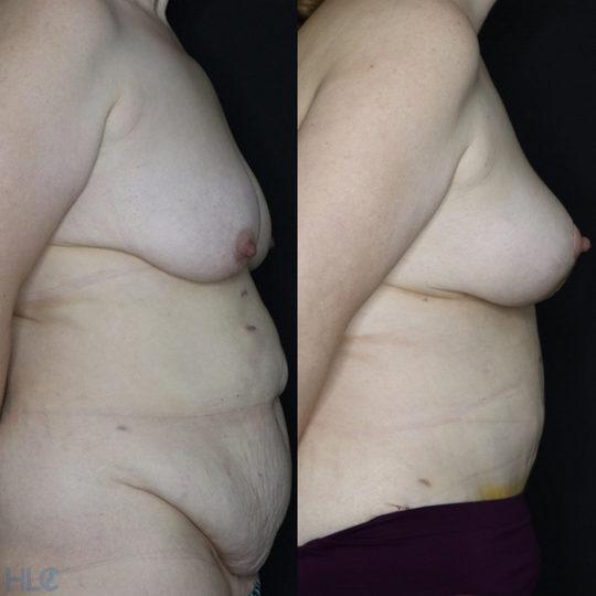 Порівняння до і після операції підтяжки грудей і пластики живота - Вид збоку