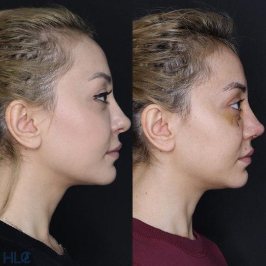 До и после повторной ринопластики, сравнительное фото - Вид сбоку