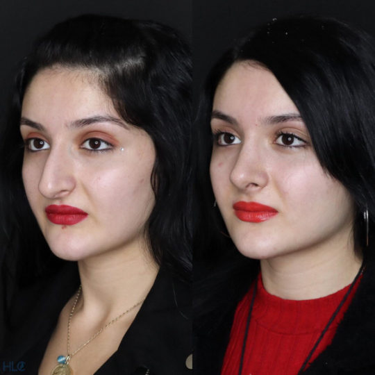 До і після ринопластики, порівняльне фото - Вид під кутом, ліворуч