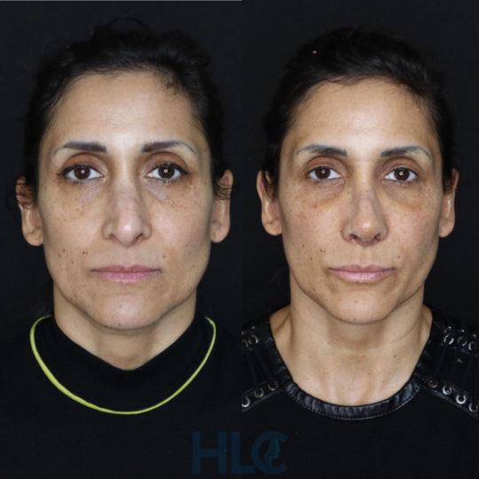До і після зменшення перенісся жінці і підняття кінчика носа, через 2 тижні - вид спереду